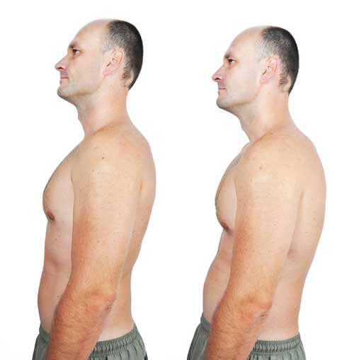 Problems Caused by Rounded Shoulders and How to Correct Them