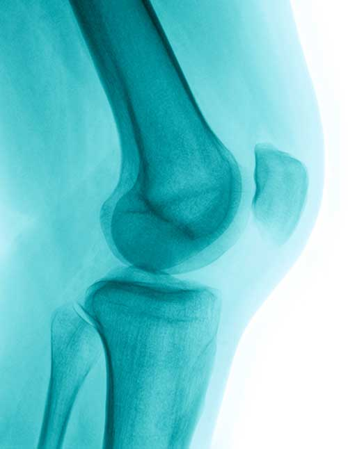 Joint health is often overlooked until the first signs of osteoarthritis appear. This article looks at the importance of keeping your cartilage healthy and how to do it, so you can enjoy many years of pain-free activities.