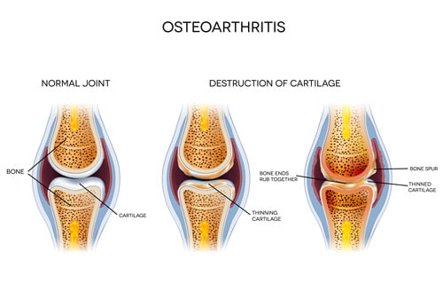 Can Diet & Nutrition Prevent or Slow the Development of Osteoarthritis?