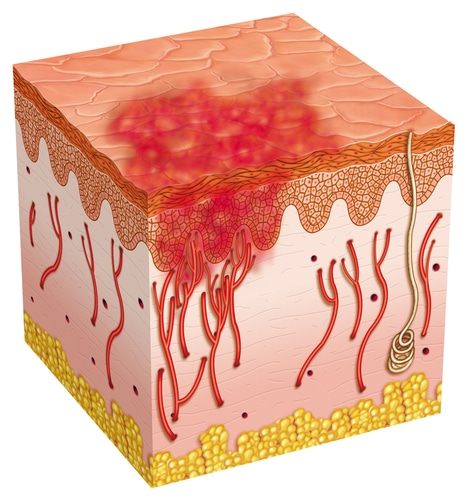 Understanding Chronic Inflammation