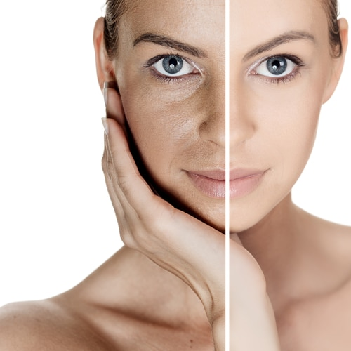 Aging Skin: Understanding Two Types of Skin Aging