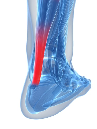 The Process to Start Rehabbing an Achilles Injury