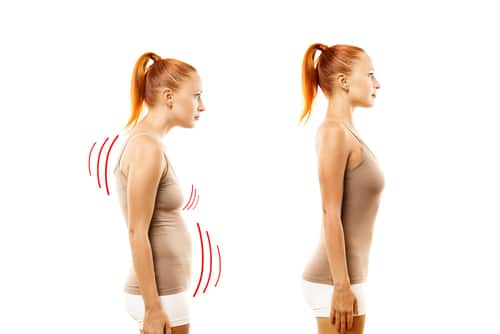 How to Fix Your Posture With Exercise