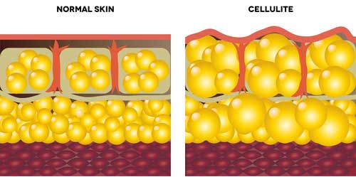 The Anatomy Of Cellulite Is It Just Fat Cathe Friedrich