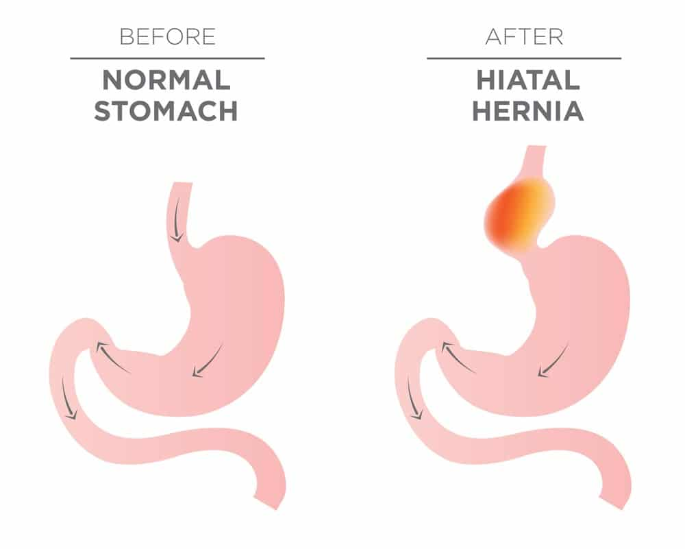 An image of a hiatal hernia