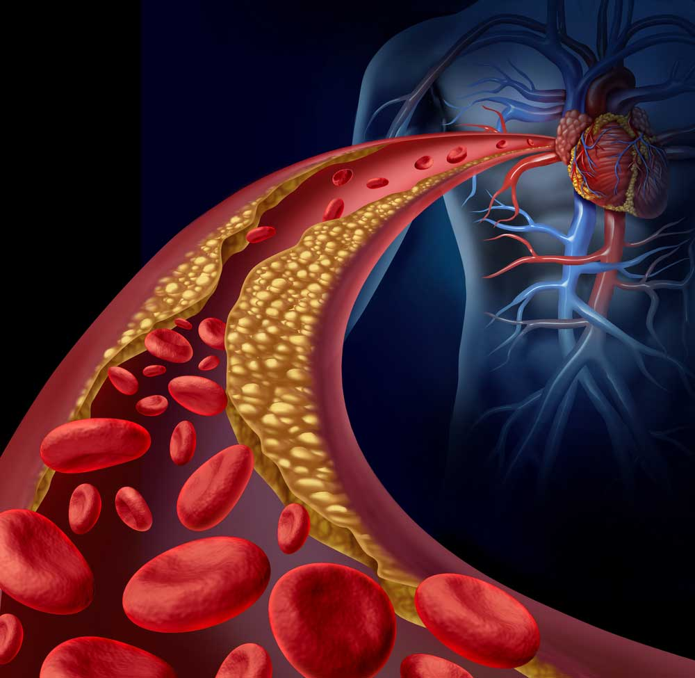 An ischemic stroke happens when a blood vessel carrying blood and oxygen to the brain forms a clot increasing the risk of stroke.