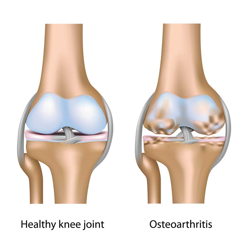 The length of your legs might cause you to have knee arthritis