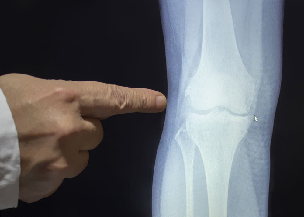 arthritis and joint health