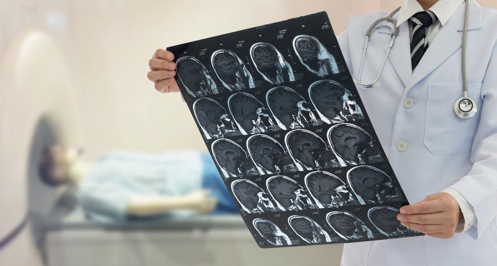 Preventing strokes
