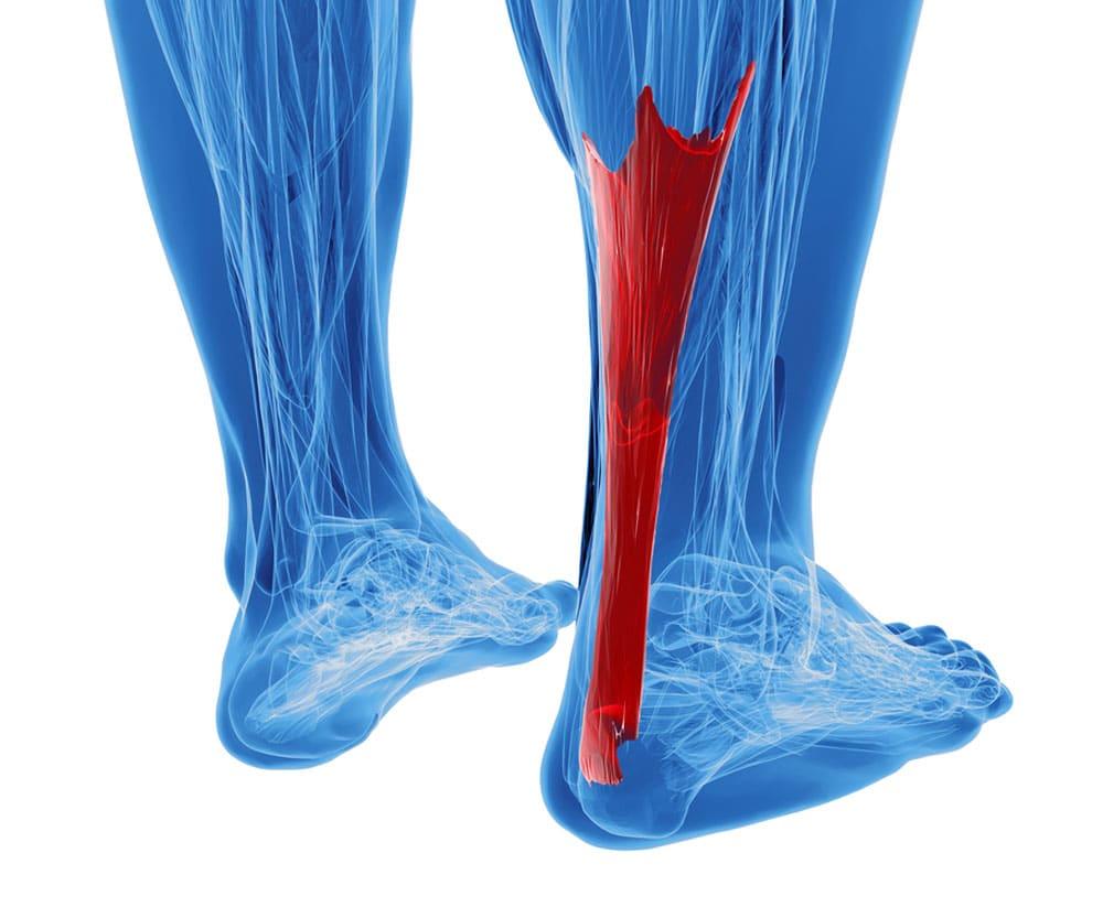 tendons
