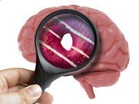 Diet high in sugar and brain health